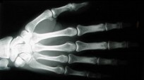 raio-x- mão hand skull